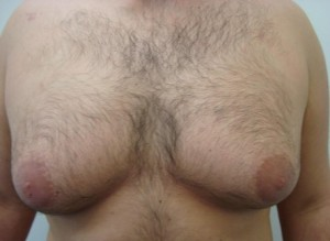 liposuction-chest-before-after-photo-382-10-e1393176910104